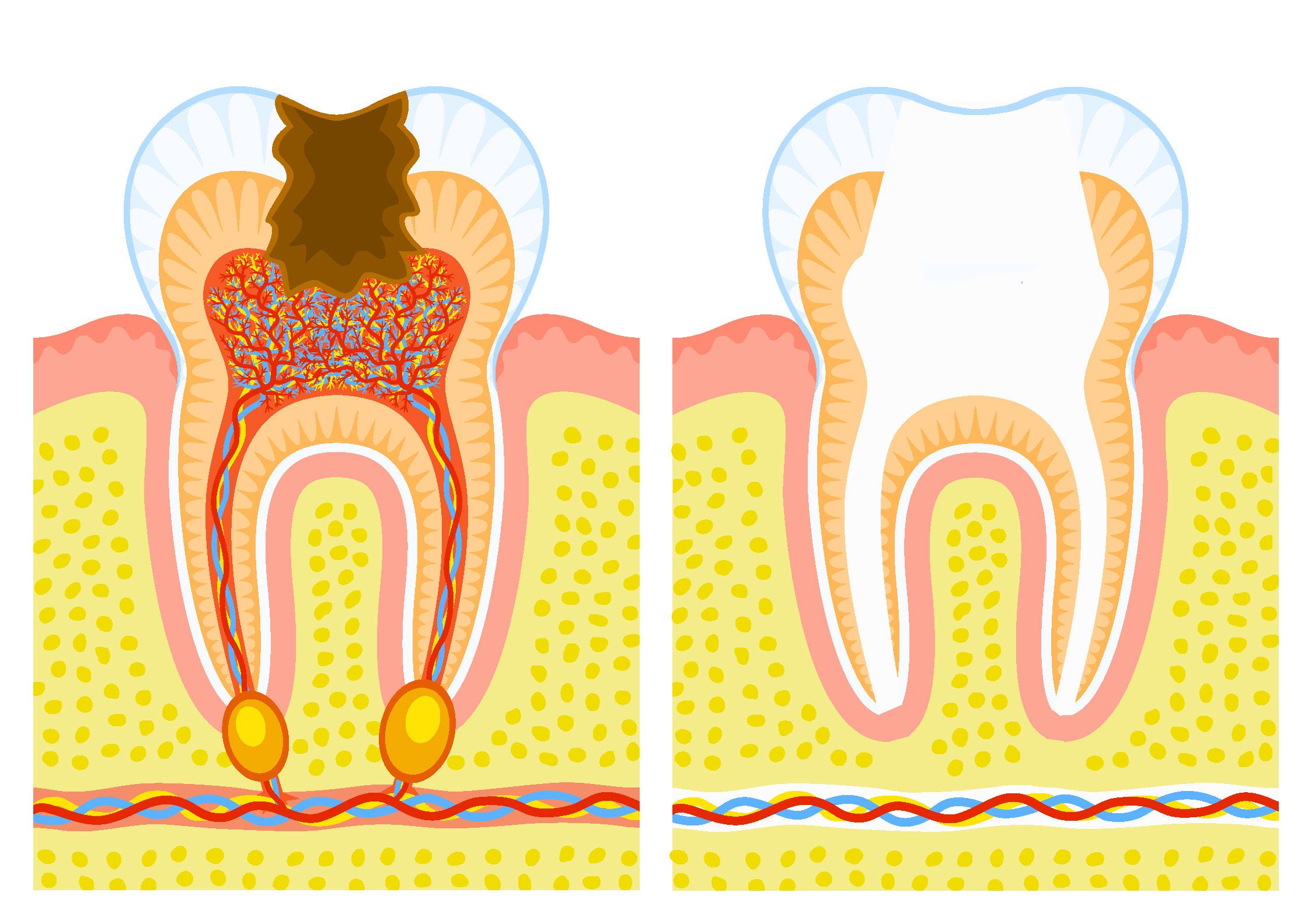Pulpectomie: la dent est dévitalisée
