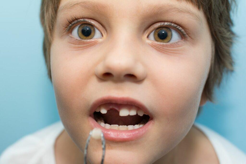 Quelles sont les raisons d'arracher une dent de lait chez le dentiste ?