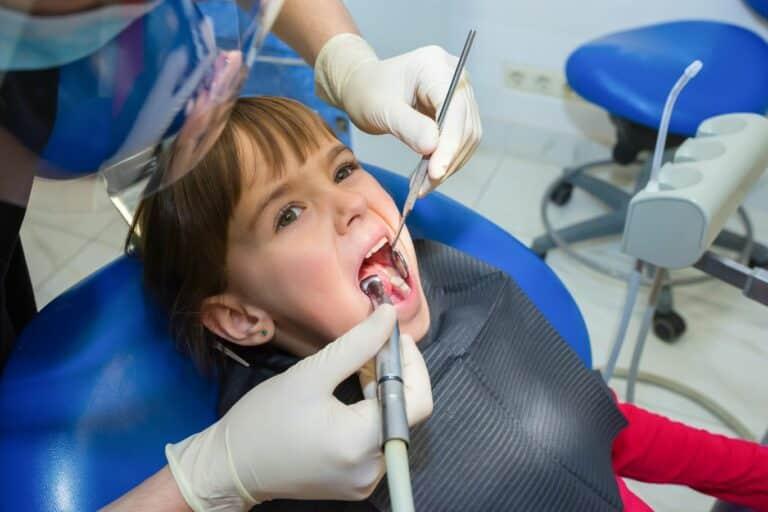 Dent de lait cassée : les réparations possibles