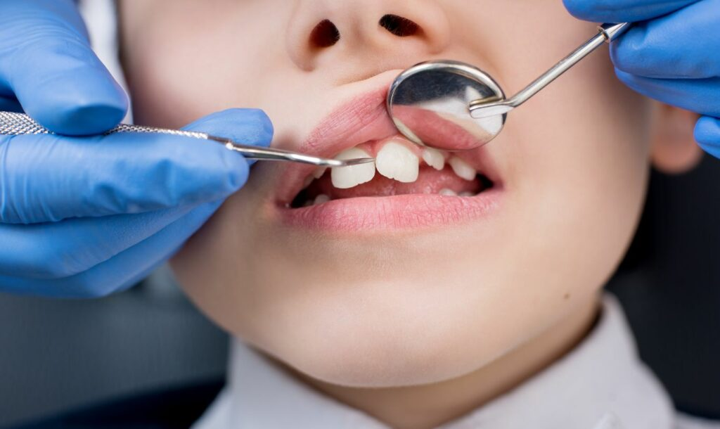 Comment enlever les taches de fluor sur les dents ?