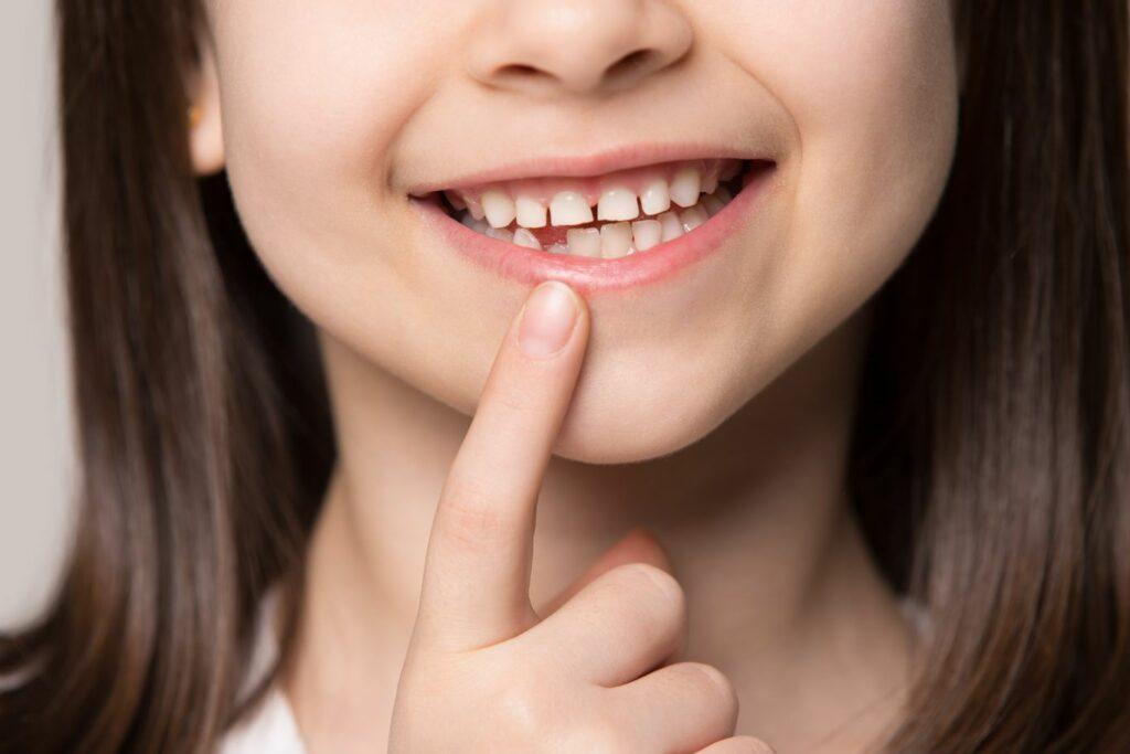 Comment reconnaître une dent de lait ?